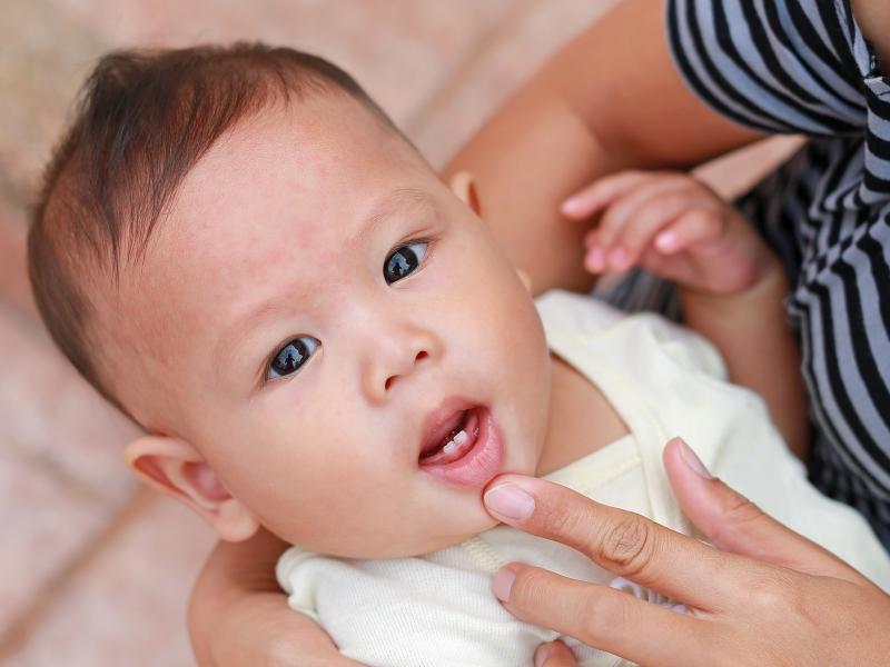 Quando começar a higienização dos dentes das crianças_POST